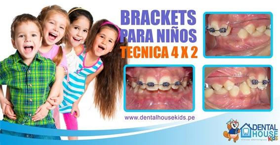 BRACKETS-NIÑOS-ORTODONCIA-KIDS-DIENTES-MAMAYNENE-DENTAL