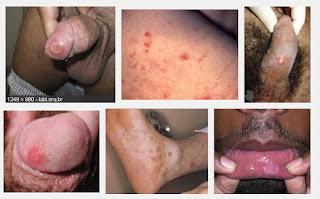 Penyakit Sipilis Pria