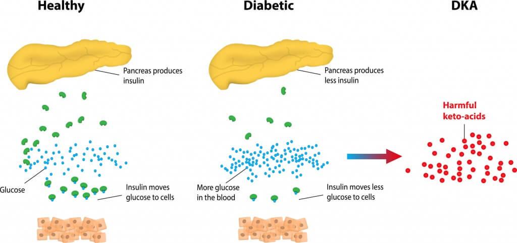 Diabetic-Ketoacidosis-DKA