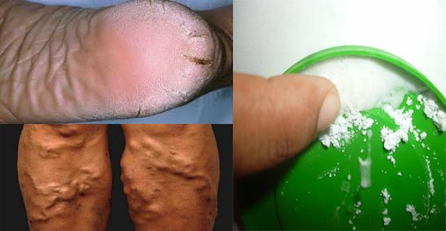 El medio para los baños de la psoriasis