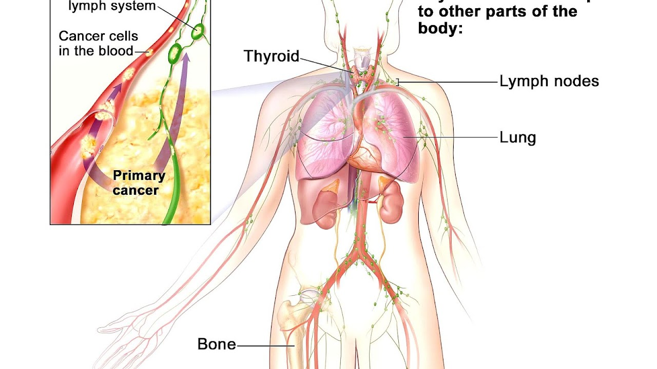 Cancer Spread To The Lymph Nodes Spread Choices