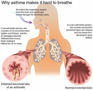 Brittle asthma, catastrophic sudden severe bronchial asthma