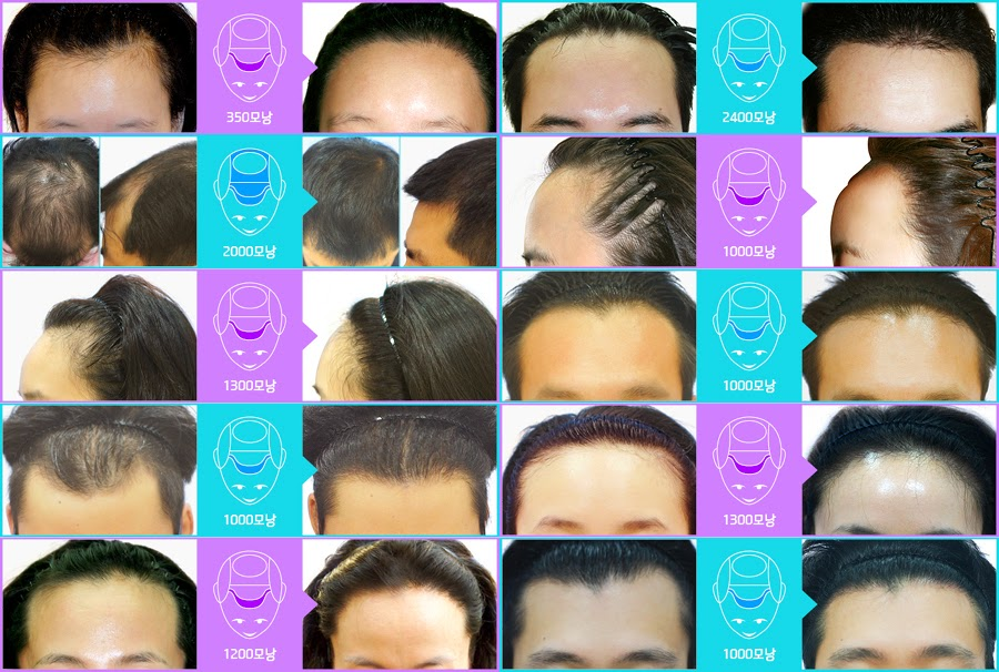 Before and After hair transplant at FORHAIR Korea, hair loss before and after