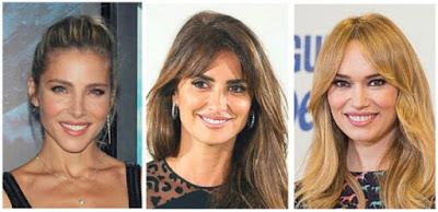 celebrities con carillas dentales