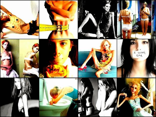 trastornos alimentarios, adolescentes, Irene Alonso Vaquerizo, trastorno psicológico, Ana y Mia no quieren ser princesas