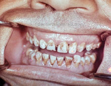 "<Img src =""defectos-dentale-por-fluorosis.jpg"" width = ""220"" height ""172"" border = ""0"" alt = ""Fluorosis dental en paciente cubano."">"