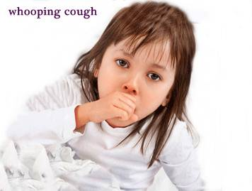 Treatment for Whooping Cough in Babies