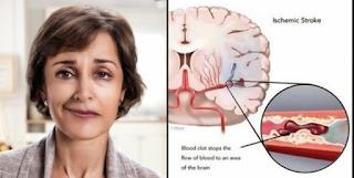 Gejala Yang Timbul Pada Penderita Stroke