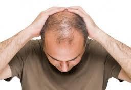 Merawat Kulit Kepala Botak Dengan Cara Sederhana