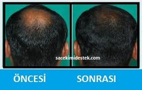 saç mezoterapisi öncesi ve sonrası 7