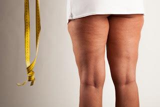 Boisson curative pour lutter contre la cellulite du corps