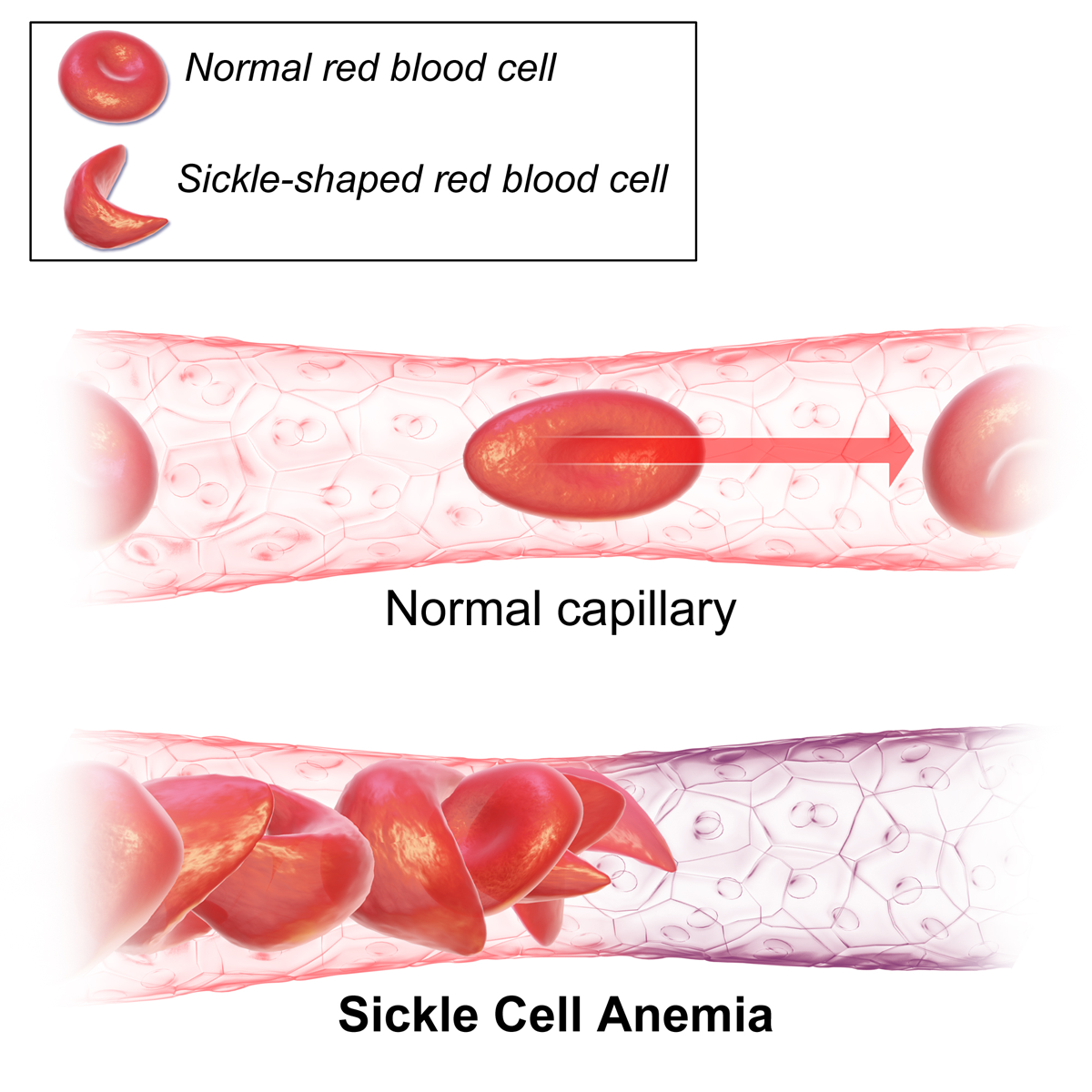 Crispr Gene Editing Corrects Sickle Cells In A Mouse
