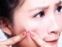 Beberapa Macam Penyakit Kulit Yang Sering Kita Jumpai