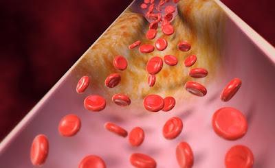 ¿Qué es un perfil de lípidos?