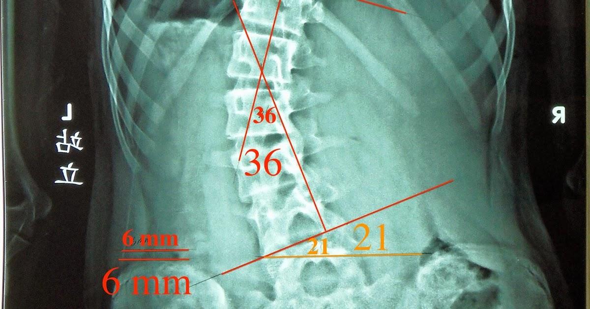 脊椎側彎個案報告六-每週一次7.5個月29~19.5度 - 閻曉華脊骨神經醫學網