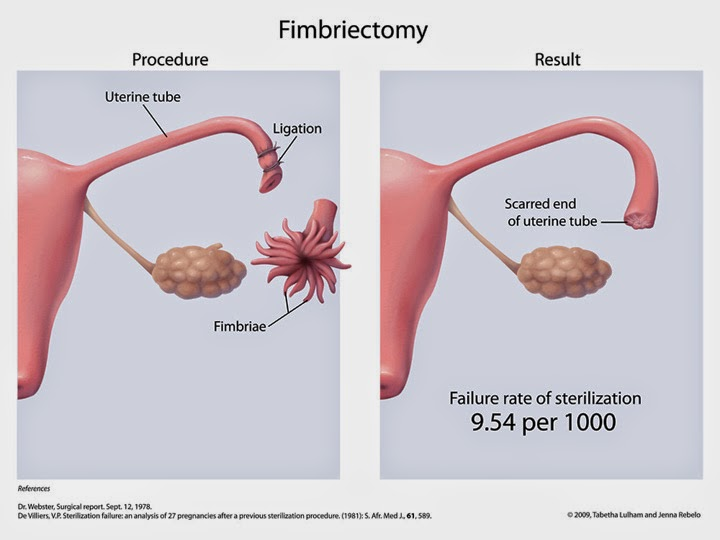 post tubal ligation syndrome Some women complain of serious medical problems after having their tubes tied  they even have a name for it: post-tubal ligation syndrome but doctors have.