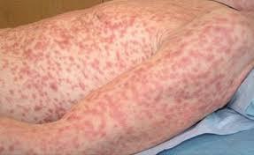 Gambar Ciri- Ciri Penyakit Sipilis
