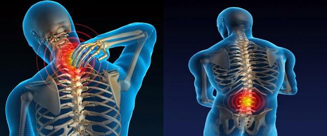 durerile de spate pot fi vindecate pe cai naturale