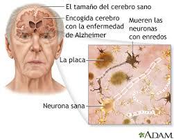 Conozca más a fondo la enfermedad de Alzheimer