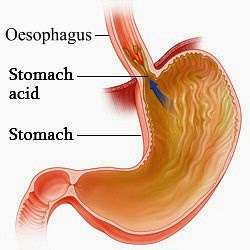 Gastro Oesophageal Reflux Disease, GORD