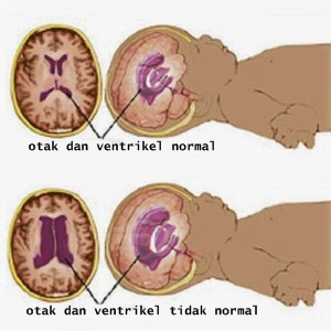 Info Hidrosefalus