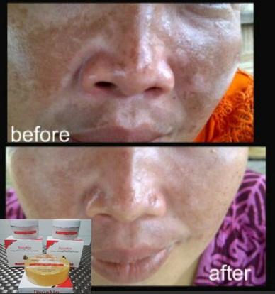Cream Pemudar Flek Membandel Di Wajah Merk Liyoskin
