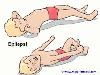 Penyebab Dan Gejala  Epilepsi