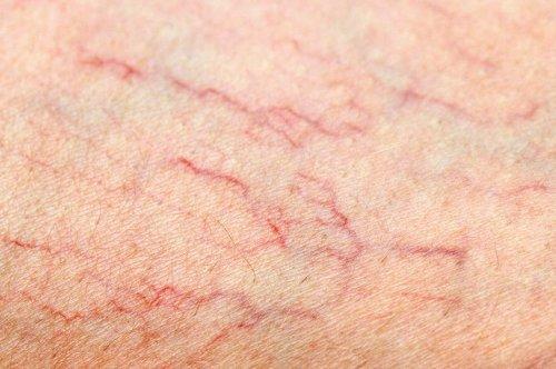 Réduire l'inflammation et les varices