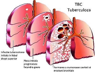 pierderea în greutate tuberculoză latentă