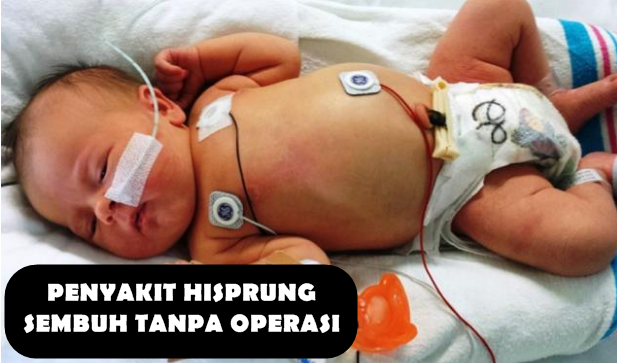 Penyakit Hisprung Sembuh Tanpa Operasi
