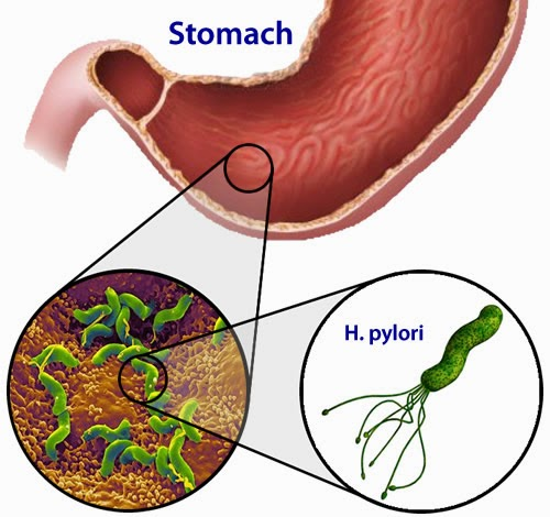 bacteria helicobacter pylori provoaca ulcer si chiar cancer stomacal