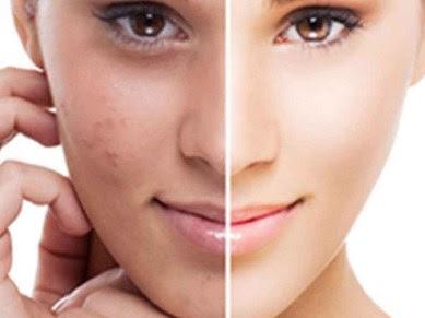 cara mengatasi flek hitam di wajah dengan bahan alami dan kedokteran