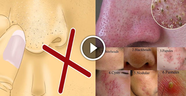 How To Get Rid Of Blackheads Very Fast With Home Ingredients