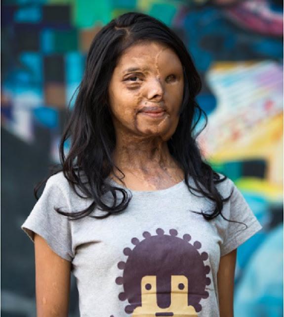 shabbo sheikh acid attack survivor