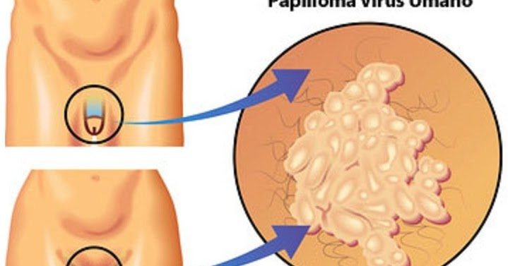 Вирус папиломы человека при анальном сексе