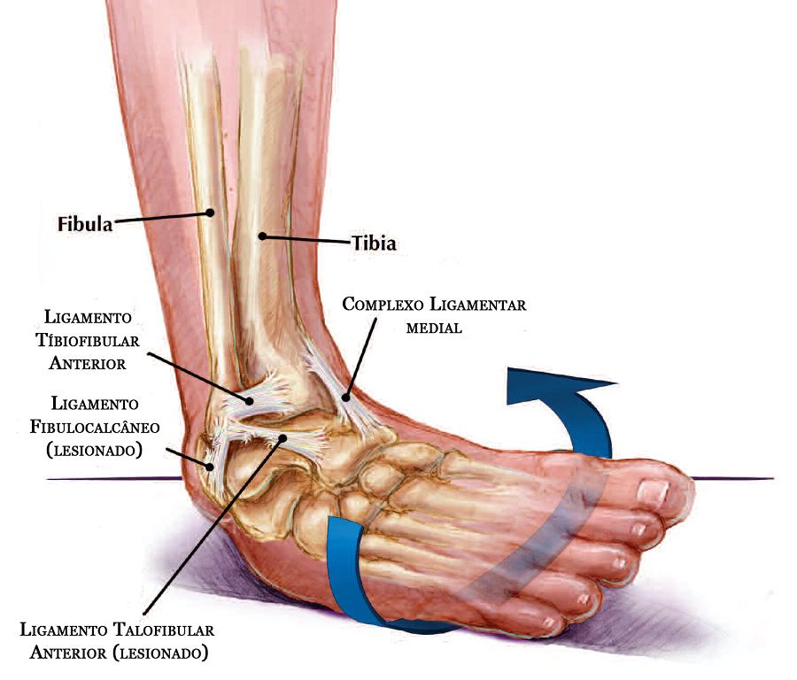 Foot Sprain 95