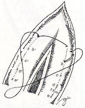 Teknik menjahit dehisensi luka operasi abdomen b