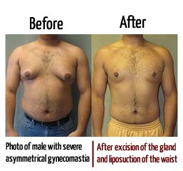 Photo of male with severe asymmetrical gynecomastia