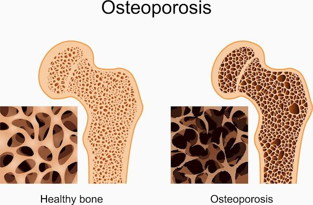 Faktor Penyebab Penyakit Osteoporosis