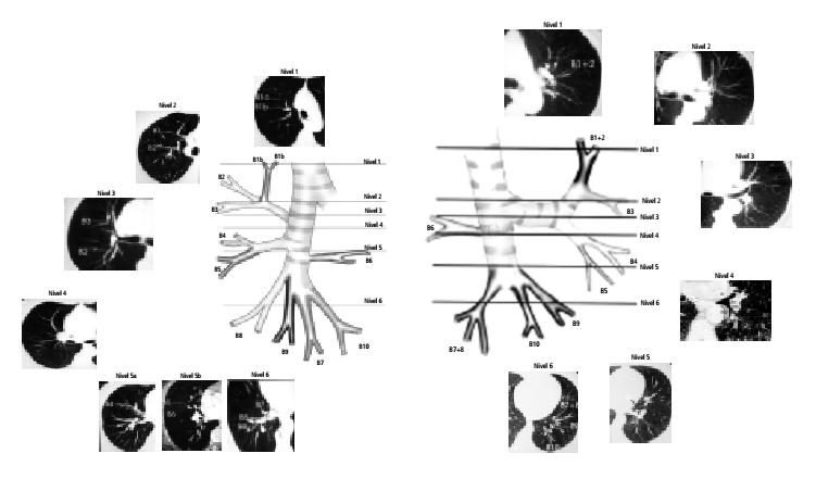 Anatomía Normal de la vía aérea y la segmentación pulmonar por ...