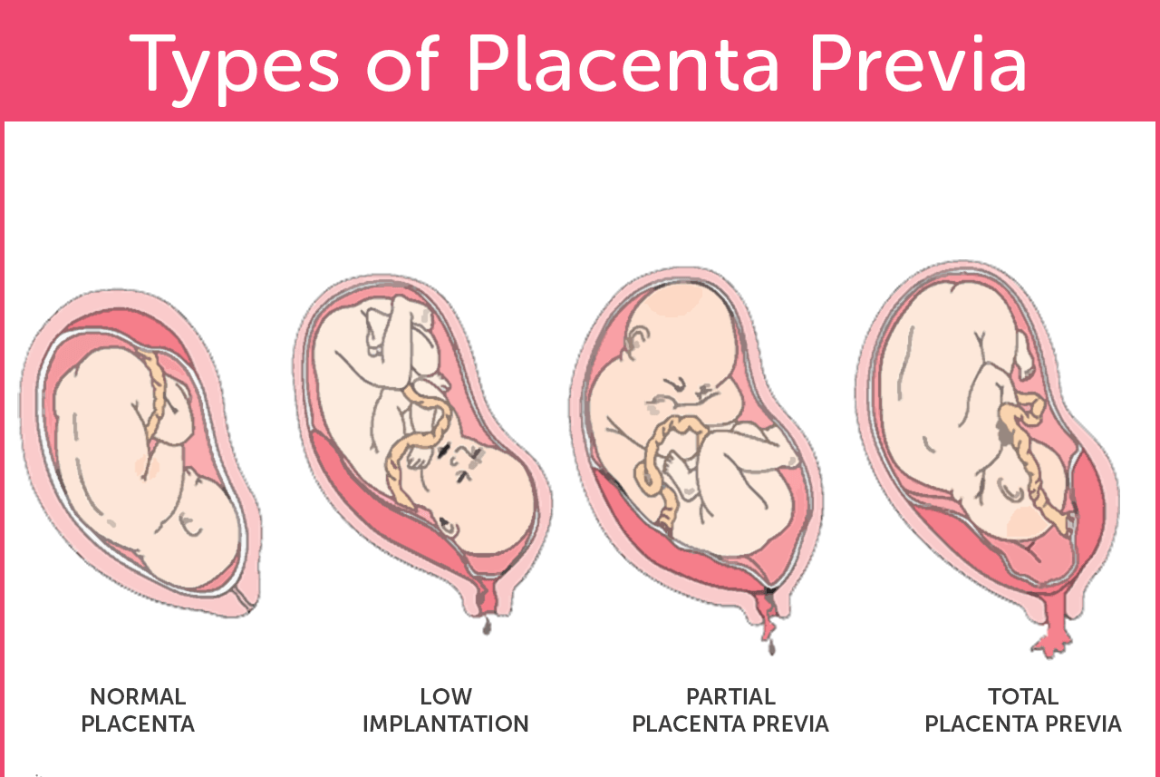 My Family Medicine Practice: Placenta Previa - A Low Lying ...