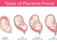 Placenta Diagram