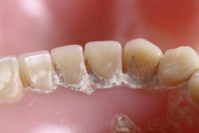 Cara Membersihkan Karang Gigi Secara Alami Dan Tradisional
