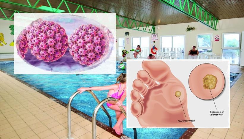 papilloma vírus és pool