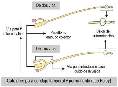 Protocolo de mantenimiento de cvc en adultos