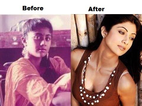 Check out before and after photos of birthday girl Shilpa Shetty (Top 10 Photos)