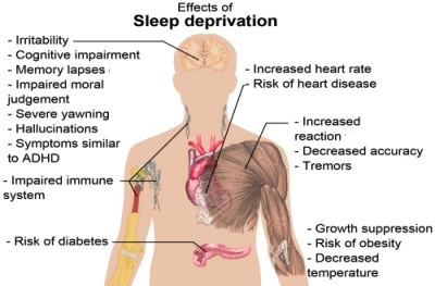 Shocking consequences of little sleep