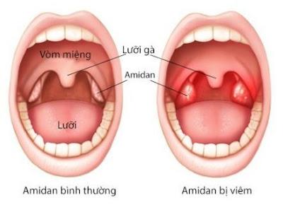 Vị trí của amidan bị viêm