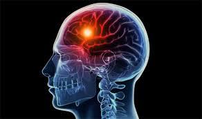 Cara Cepat Mengobati Sakit Stroke, apa penyebab sakit stroke ringan?, Cara Alami Untuk Mengobati Penyakit Stroke Ringan