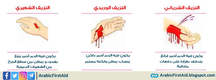 type-of-bleeding-انواع-النزيف